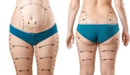 Pasiruošimas riebalų nusiurbimo operacijai
